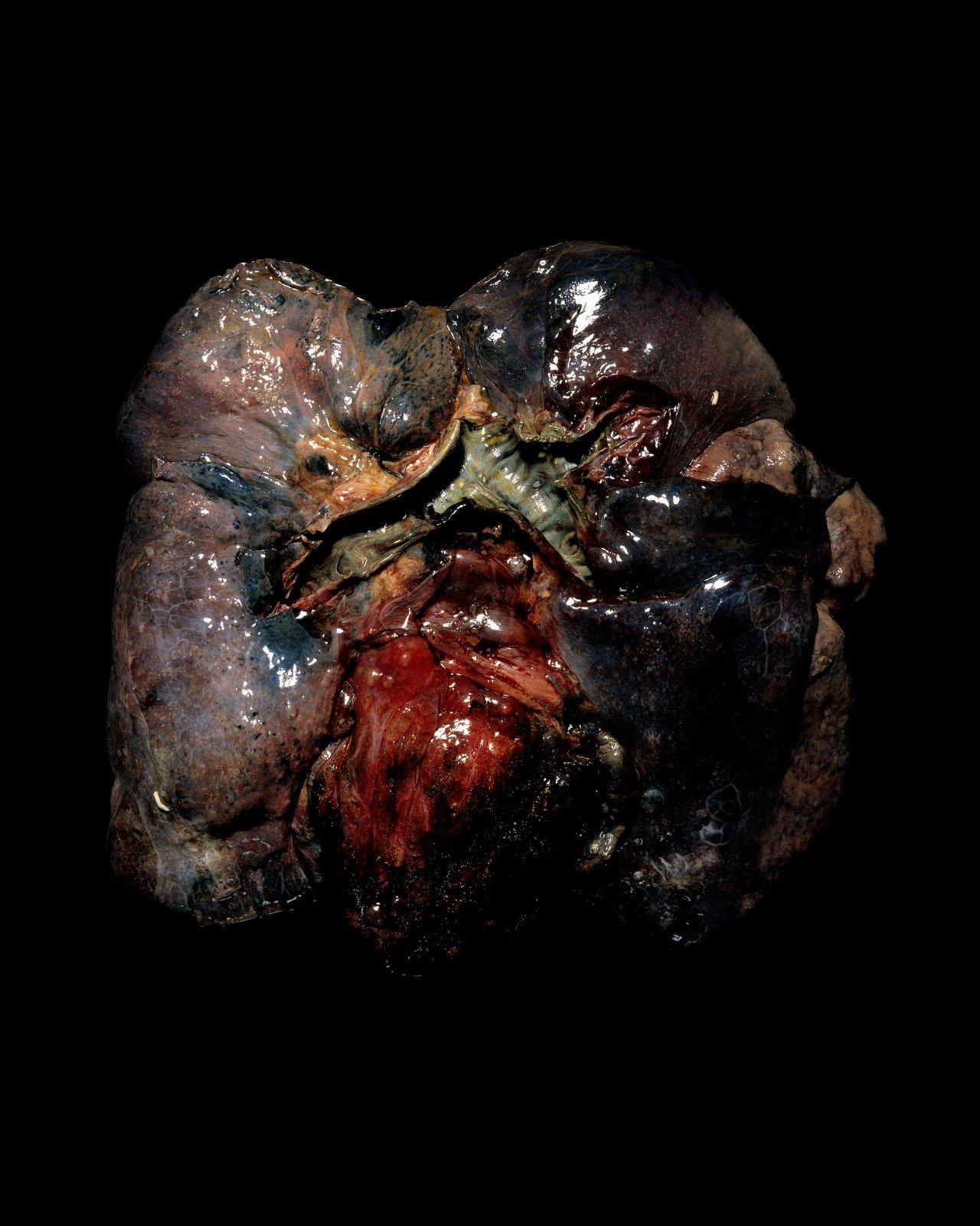 Fragile, Cardiopulmonary system, 2010 © Raphaël Dallaporta